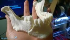 El Clínicas utiliza impresiones 3D en sus cirugías plásticas