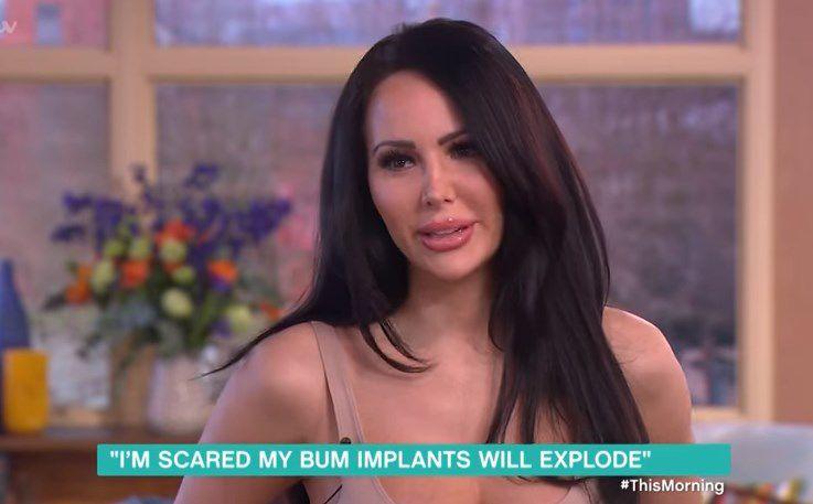 Se hizo un implante de glúteos y ahora no se puede sentar